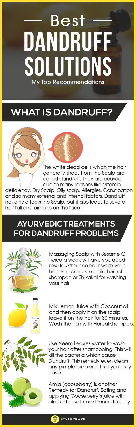 The white dead cells which the hair generally sheds from the Scalp are called dandruff. They are caused due to many reasons like Vitamin deficiency, Dry Scalp, Oily scalp, Allergies, Constipation and so many external and internal factors. Dandruff not only affects the Scalp, but it also leads to severe hair fall and pimples on the face. But there are so many Best Dandruff Solutions available. Here are a few useful tips to get rid of dandruff.