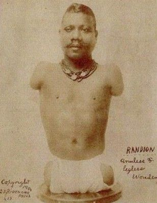 Prince Randian- also known as The Snake Man, The Living Torso, The Human Caterpillar and a variety of other names was an American performer with tetra-amelia syndrome and a famous limbless sideshow performer of the early 1900s, best known for his ability to roll cigarettes with his lips.