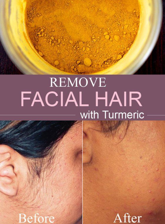How to remove small facial hair-8569