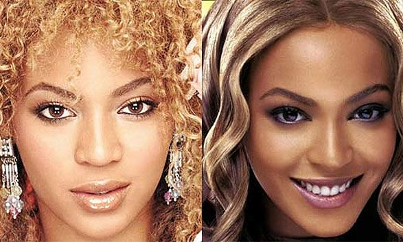 Not as perfect as you had thought. Beyonce's nose job, cheek implants, chin implant, lipo, and lip reduction.