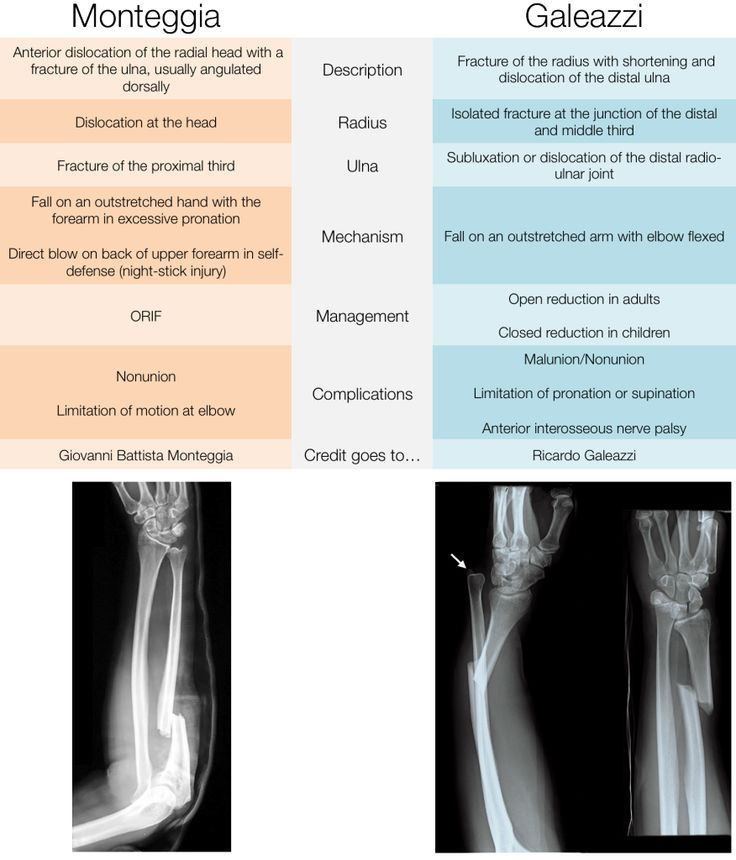 8 best Orthopedics images on Pinterest | Hand therapy, Health and ...