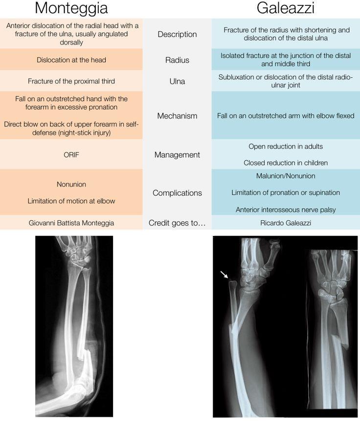 galeazzi fracture vs monteggia - Google Search | Medicine ...