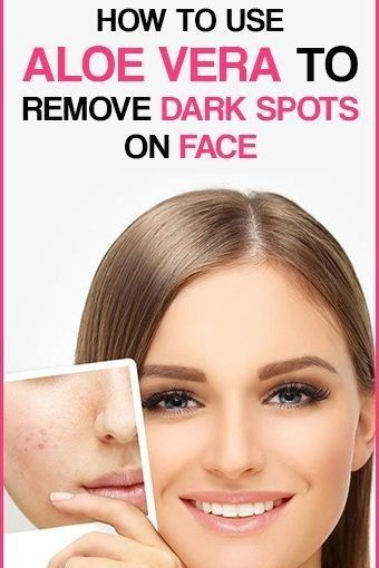 How To Use #Aloe #Vera To Remove #Dark #Spots On #Face