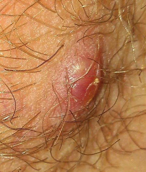 Question Aboout Herpes/HPV Wart? 2