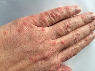 hand and mouth symptoms in adults