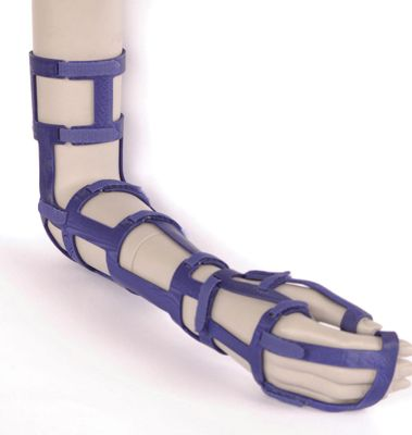 EXO. 3D printed cast heals broken bones faster than traditional plaster cast. Because of its open, waterproof and removable structure, physiotherapy can start immediately wich shortens the healing time and prevents complications. Gintare Cerniauskate. DDW 2013 #ddw13