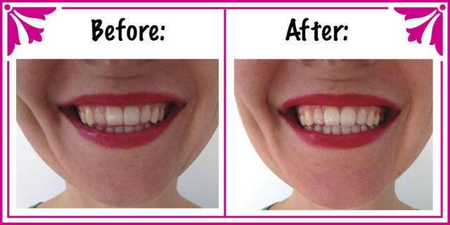 How to make an all-natural teeth whitening treatment  - Cosmopolitan.co.uk