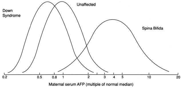Fetal Neural Tube Defects: Diagnosis, Management, and Treatment | GLOWM _ Log gaussian distribution of alpha-fetoprotein levels in maternal serum between 16 and 18 weeks in singleton pregnancies
