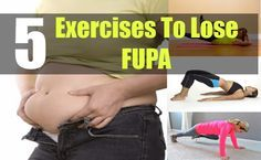 FUPA or fatty upper pubic area is an extremely common problem in women who have just delivered a baby or in people who are obese. It can also be genetic, though studies reveal that with a modified ...
