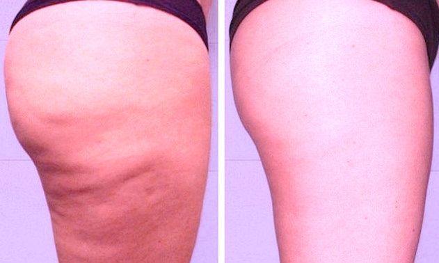 COMMENT FAIRE POUR AMÉLIORER SA SANTÉ ? La cellulite n'est pas une maladie, mais c'est une plainte très fréquente chez les femmes. C'est un réservoir de graisses difficilement mobilisable par le régime, dont les facteurs hormonaux sont souvent responsables. Elle est présente surtout au niveau du haut des cuisses, des haches et des fesses.