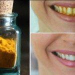 Zahnschmerzen hat bestimmt fast jeder Mensch irgendwann in seinem Leben. Man wünscht sich nichts sehnlicher, als dass dieser Zustand sich endlich ändert. Jedoch treten die Schmerzen meist zu Zeiten auf, in denen der Zahnarzt des Vertrauens keine Sprechstunde hat oder es ist gerade Wochenende oderein Feiertag. In diesem Fall kann die Wartezeit bis zur Behandlung