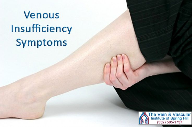 Venous Insufficiency Symptoms:  - Leg cramps - Restless legs at night - Heaviness, tired and achy legs - Feeling of tightness in the calf muscle - Pain in the legs while walking or shortly after stopping - Swelling of the legs and ankles - Varicose veins in the legs  Learn more at: https://www.veinandvascularofspringhill.com/service/venous-insufficiency-treatment/  #VenousDiseaseSpringHill #VenousDiseaseSpringHillFL #VenousDiseaseTreatmentSpringHill #ChronicVenousInsufficiencySpringHill