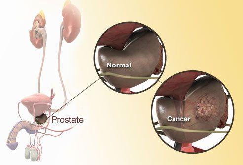 Illustration Of Prostate