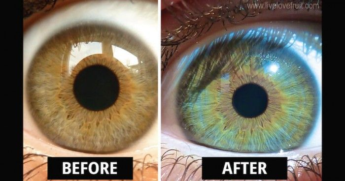 """Kristina Carrillo-Bucaram claims that eating a raw food diet turned her eyes from """"a very dark café brown color"""" to a """"hazel color with almost a honey lining around iris and they're actually starting to turn blue."""" She posted a video that gained millions of views at this point—as well as comments, most of which are in disbelief of Carrillo-Bucaram's claim. She's not the only one to make it, though. Steve Factor, """"The Pure Energy Chef,"""" has also experienced changes in eye color, according..."""