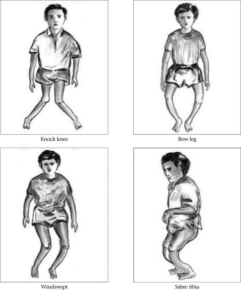 Riisi (rickets)  Medical Portal - View Posts - Do You Really Understand  Rickets in Children?  4 Know-How's of Responsible Parents
