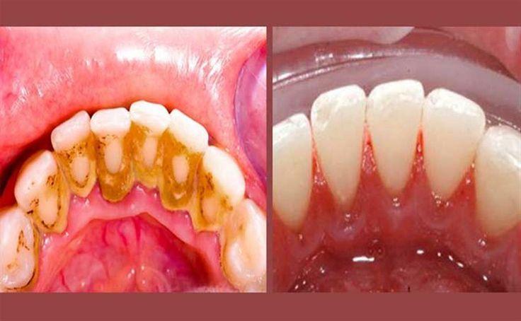 Un antes y después básico para eliminar el sarro de nuestras dientes. ¡Apuntad todo!