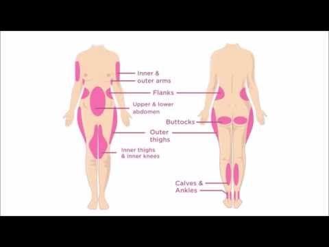 Ce zone poti remodela prin operatia estetica de liposuctie - YouTube OminiClinic Iasi - doctor Theodor Motruc