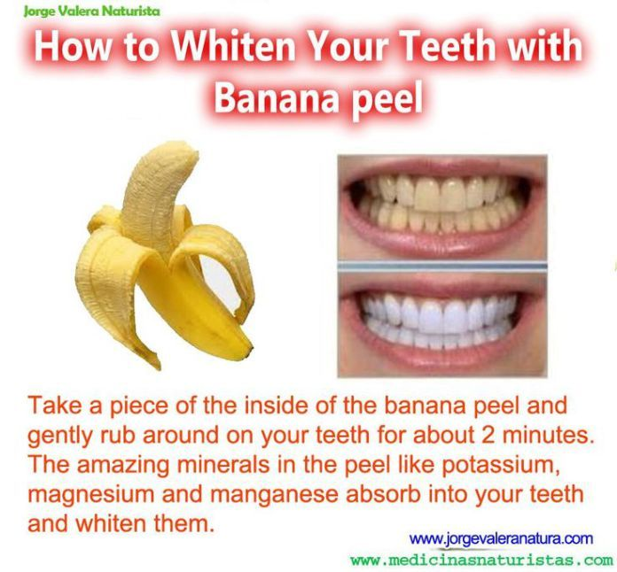 Best DIY Hair Masks And Face Masks : banana teeth whitener http://getfreecharcoaltoothpaste.tumblr.com
