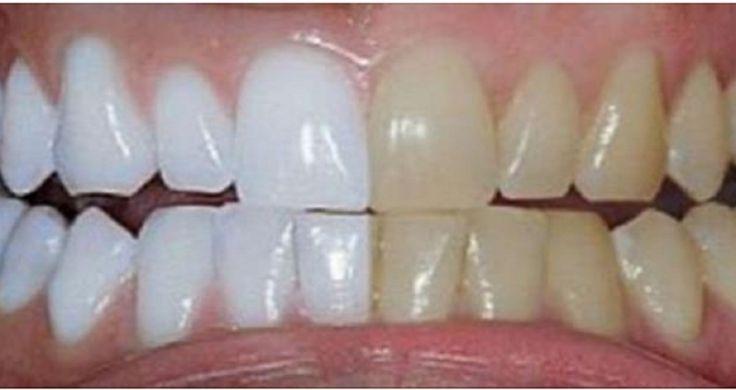 Aujourd'hui, avoir des dents saines et blanches est souvent synonyme de bonne santé et de beauté. La dentition est le reflet de l'hygiène bucco-dentaire, qu'elle soit irréprochable ou qu'elle laisse à désirer. Si tel est le cas, cela se remarque par des dents jaunies qui ont perdu de leur éclat. Or, un sourire éclatant de blancheur permet de se sentir bien dans sa peau et de ne pas avoir de complexe.