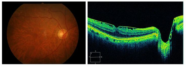 Figure 14 A shallow posterior vitreous detachment (PVD) with shrinkage of the posterior vitreous cortex in a case with an epiretinal membrane (ERM).
