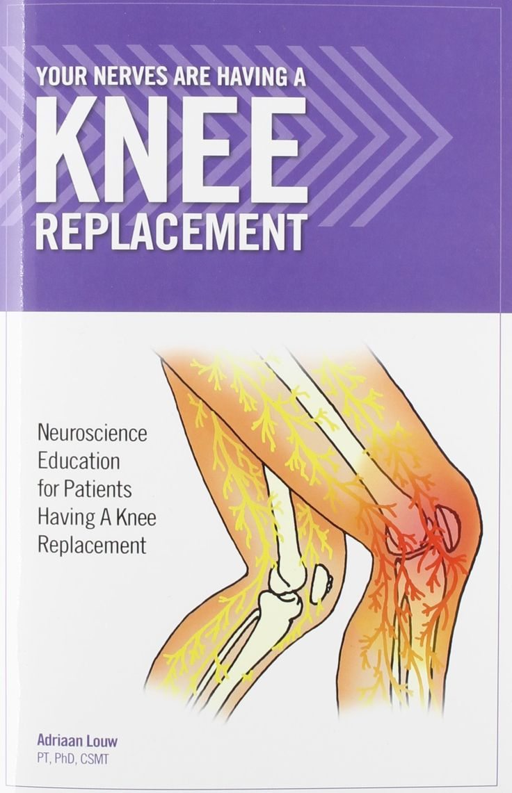 Your Nerves Are Having A Knee Replacement (8753): Adriaan ...