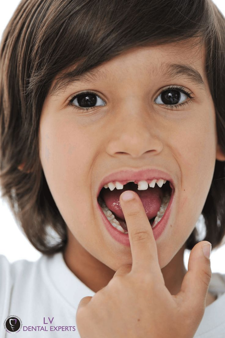 Best tips to painlessly pull a loose tooth. Loose tooth