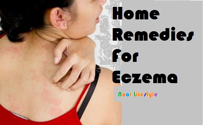Eczema Causes, Symptoms, Treatment See More details at: http://bit.ly/1HMLfTb