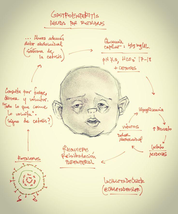 Gastroenteritis aguda por rotavirus Fuente ...