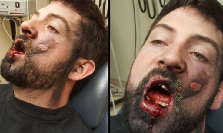 Il essaie d'arrêter de fumer et sa cigarette électronique lui explose au visage !