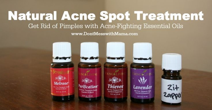 Natural Acne Spot Treatment - Get Rid of Pimples Naturally with Essential Oils #essentialoils #naturalremedies #acne - DontMesswithMama.com