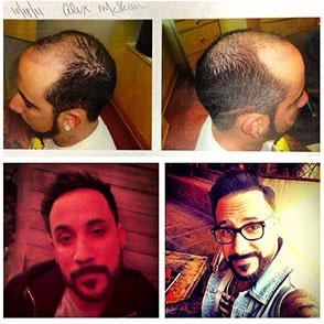A.J. McLean, Hair Transplant: Backstreet Boy Member Shows Off New 'Do (PHOTOS)
