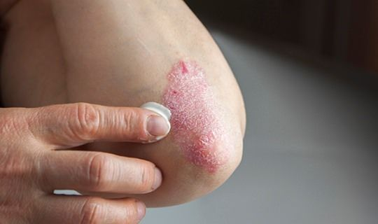 How to Treat Eczema Naturally? How to treat eczema naturally? Eczema influences people of all ages and can cause wretchedness. Specialists frequently endorse a steroidal cream, whic...