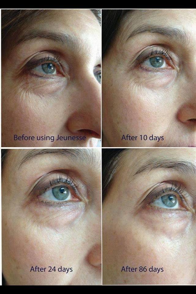 Amazing results! 86 days after using Jeunesse Luminesce  serum.
