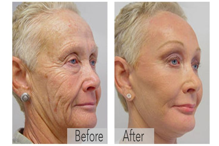 Want younger, wrinkle-free skin without getting any expensive botox or face lifts? Try out Art Harding's Instant Face and Neck Lift ($25.00), available at crcmakeup.com.