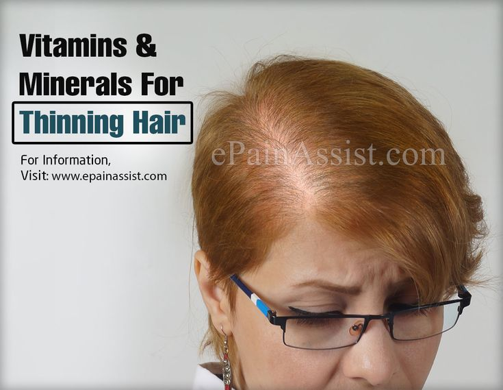 Vitamins & Minerals For Thinning Hair