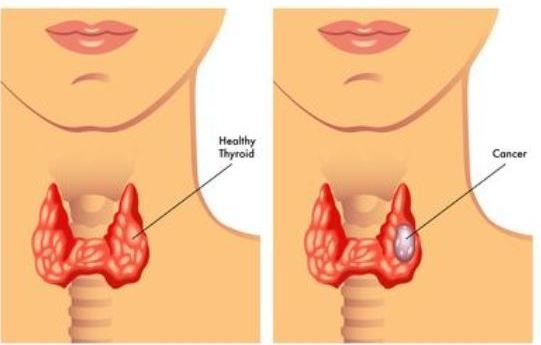 Early Sign and Symptoms Of Throat Cancer In Women and Man