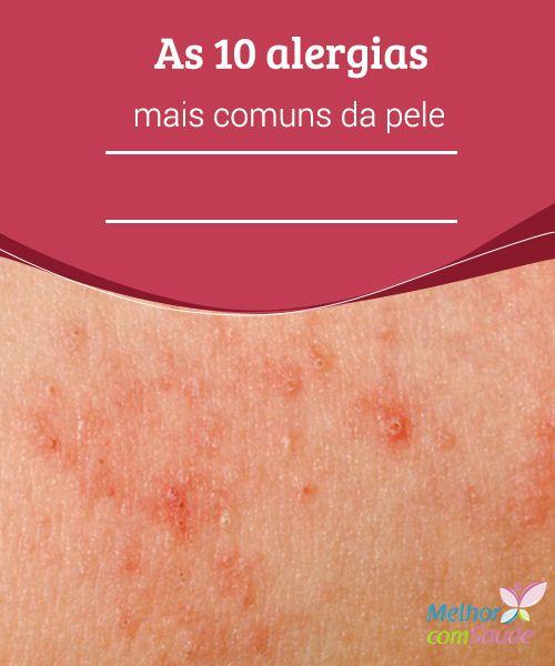 Pele: as 10 #alergias mais comuns confira  As erupções #cutâneas na pele são um sinal de alergia. Saiba mais como #identificar as dez alergias mais comuns e tratá-las antes que se tornem um #problema.