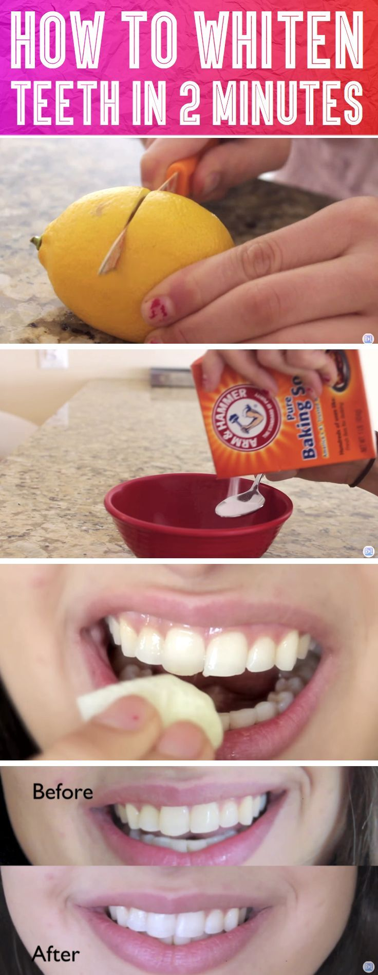 DO NOT keep the mixture on your teeth for more than two minutes u2013 the acid is very potent and will cause tooth decay if you abuse this method.