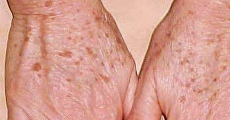 Assuntos e Achados da Scheila: Dicas para Tratar Manchas Senis das Mãos