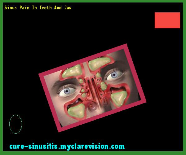 Sinus Pain In Teeth And Jaw 093731 - Cure Sinusitis
