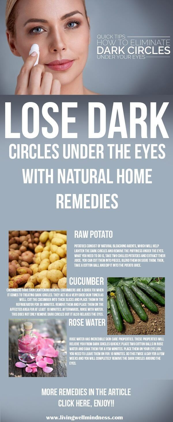 There are many different causes for dark circles. The main ones are usually, lack of sleep, stress and too much caffeine.