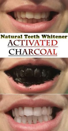 Natural Teeth Whitener with Activated Charcoal. *** Get a free teeth whitening powder, link in bio! @beautycharcoal
