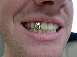 A crown is a type of dental restoration which completely caps or encircles a tooth or dental implant. It is used to restore a tooth to the most favorable appearance, shape, and occlusion (bite). A crown is long-lasting, durable, and protects the underlying tooth. As with veneers, the spacing, alignment and color can be corrected to create a natural great smile.
