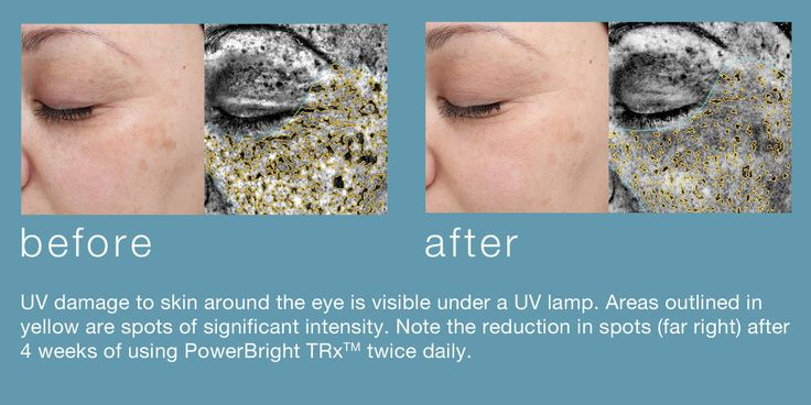 Treat and prevent hyper pigmentation safely with Dermalogica's new powerBright TRx