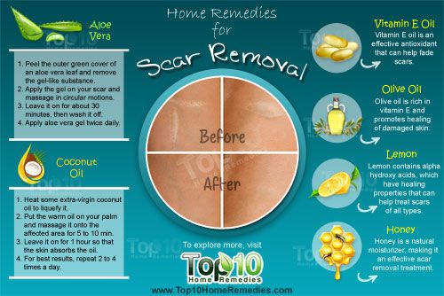 home remedies for scar removal - since they're that hideous