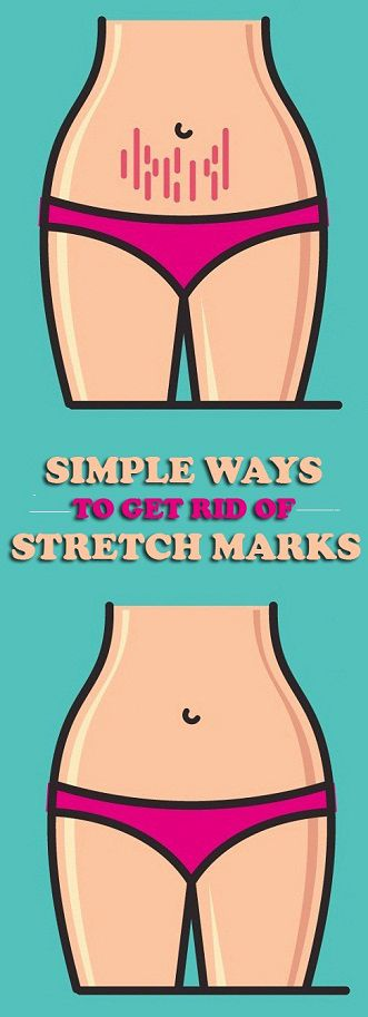 10 Simple Ways To Get Rid of Stretch Marks