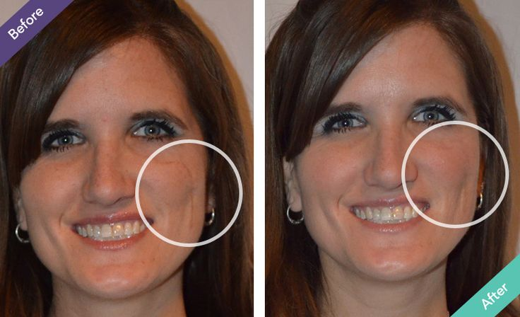 Before and afters bio oil stretch marks face wrinkles