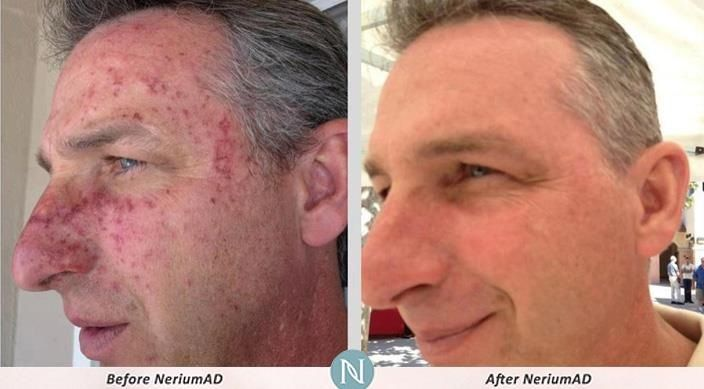 Incredible results with NeriumAD! Get the lowest wholesale price by purchasing through me at www.getreal4.nerium.com