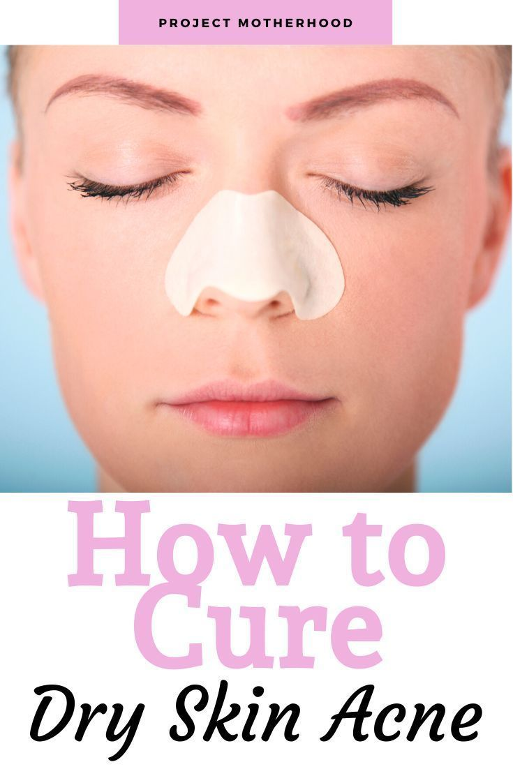 Can Dry Skin Cause Acne Project Motherhood Dry Skin Causes Dry Skin Care Cure Dry Skin