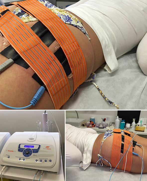 Tratamentos Corporais Clínica Lipari: Pump de Glúteos, Manthus e mais!